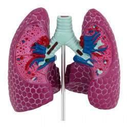 Plaučių modelis su patologijomis PHY-LM-1