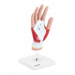 Rankos modelis su raumenų degeneracijos anatomija PHY-HM-3